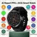 Montre connectée PPG + ECG pour hommes et femmes, moniteur de fréquence cardiaque, ECG AI, moniteur