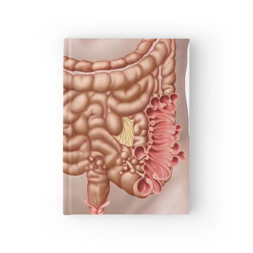 Divertikulitis im Colon descendens des menschlichen Darms. Notizbuch